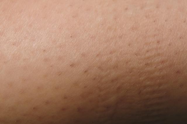 脇の毛穴ボツボツ治療法