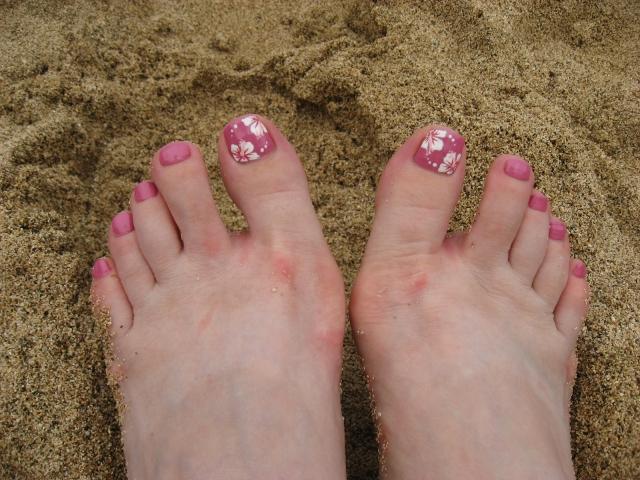 足の日焼けあと